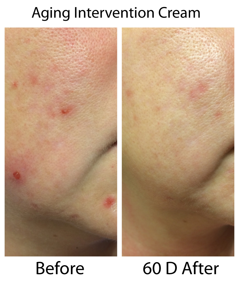Skin 2 Skin Aging Intervention Before & After