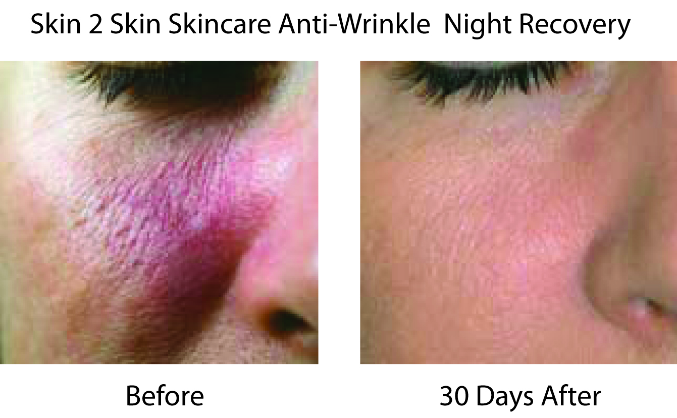S2S Anti-Wrinkle Night Recovery Before & After Gets the Red Out