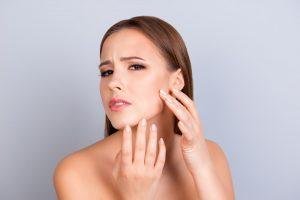 Is Vinegar Good For Acne?